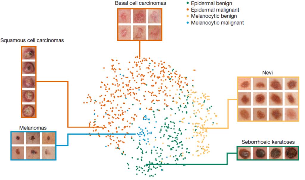 IA classification cancer peau