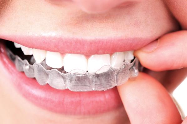gouttière dentaire